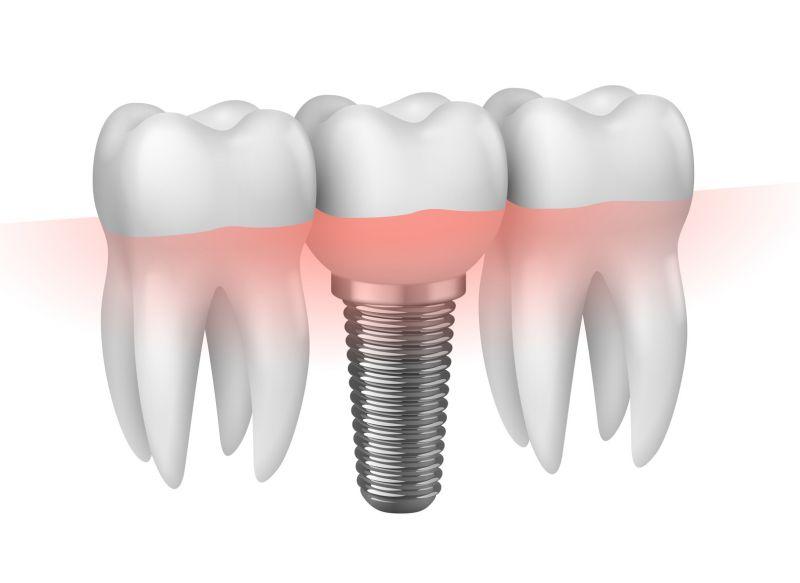 Offerta Implantologia a carico immediato Modena Sassuolo Carpi - Protesi dentale fissa mobile
