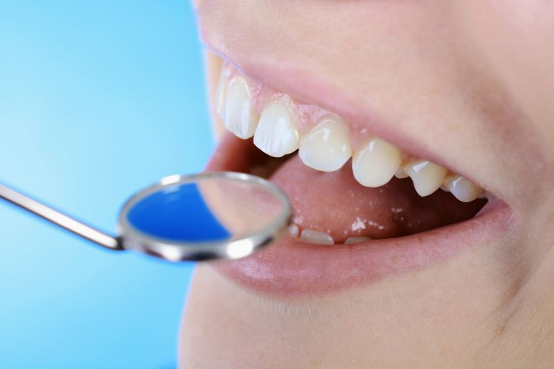 Offerta cura delle carie dentali - Promozione trattamento del mal di denti Reggio Emilia