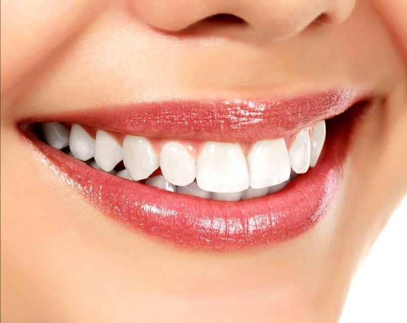 Offerta allineatori dentali invisalign-promozione apparecchio personalizzato Reggio Emilia